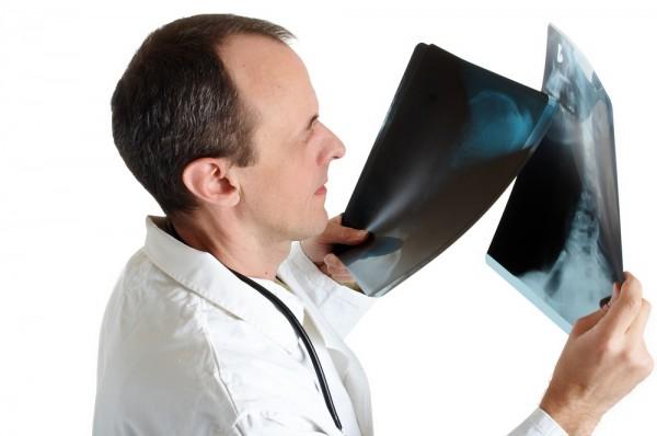 Sarkoidoza, płuca